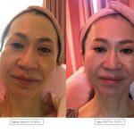 驚き!顔筋エステ導入1年目の変化